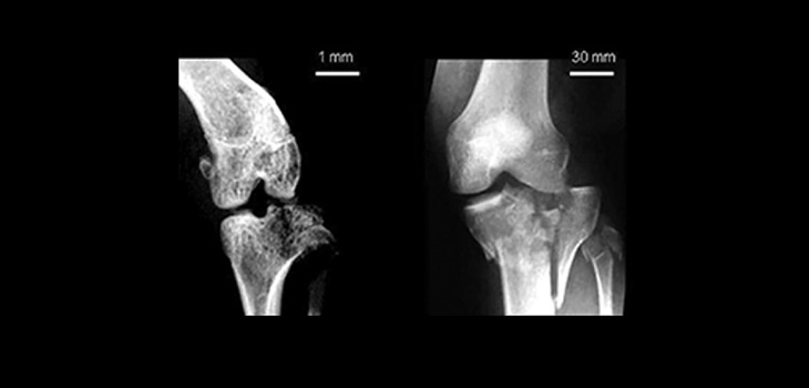 Radiographs of experimentally created mouse tibial plateau fracture (left) and clinically observed human tibial plateau fracture (right). Reprinted with permission from Furman BD, Strand J, Hembree WC, Ward BD, Guilak F, Olson SA: Joint degeneration following closed intraarticular fracture in the mouse knee: A model of posttraumatic arthritis. J Orthop Res 2007;25:578–592