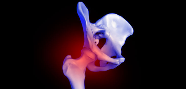 Hip Pain / Source: Wikimedia Commons and Protohiro