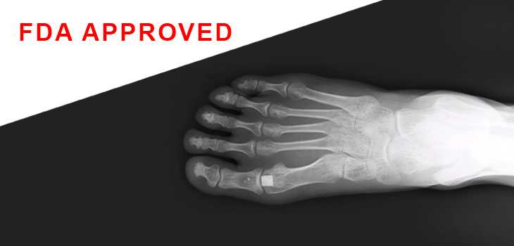 Foot X-ray showing the Cartiva Synthetic Cartilage Implant/ Courtesy of Cartiva, Inc.