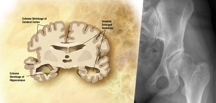 "Alzheimer's brain-severe and a hip x-ray / Sources: Wikimedia Commons and ADEAR: ""Alzheimer's Disease Educaiton and Referral Center, a service of the National Institute on Aging."""